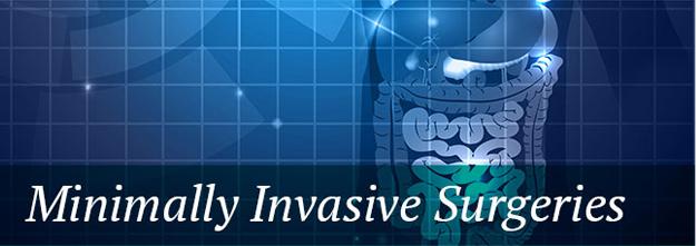Minimally Invasive Surgeries